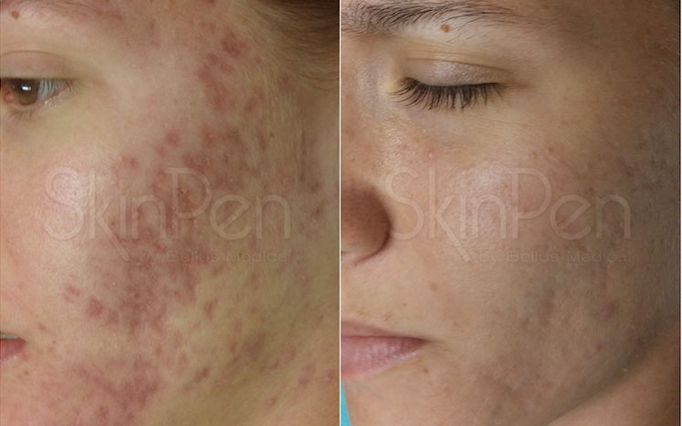 SkinPen Before & After