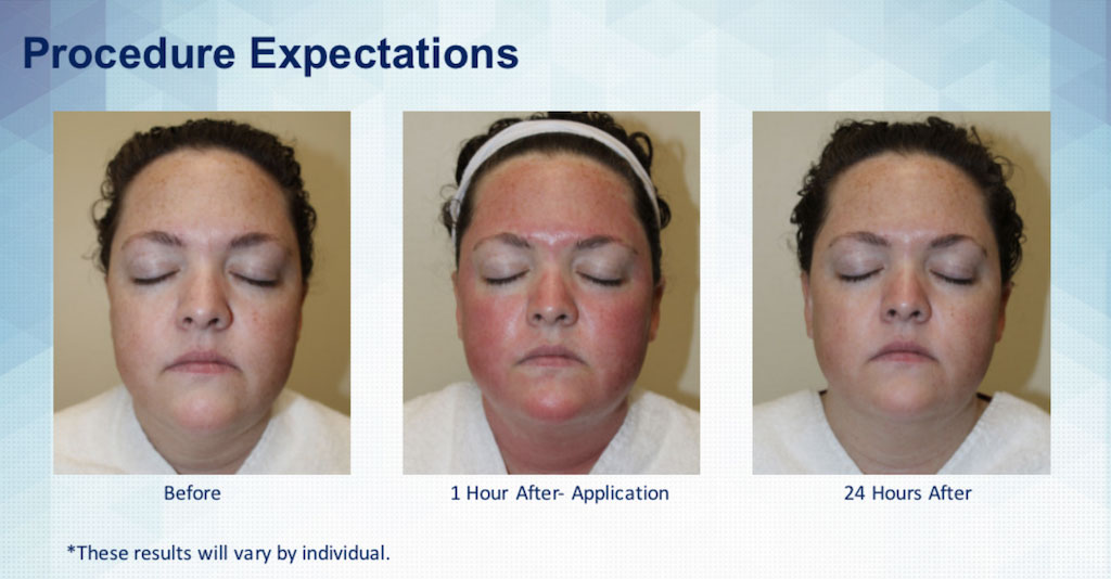 SkinPen Procedure Expecations